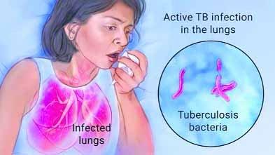 एक मरीज पर खर्च किए जा रहे 13 लाख रुपए, फिर भी बढ़ रहे हैं टीबी के मरीज